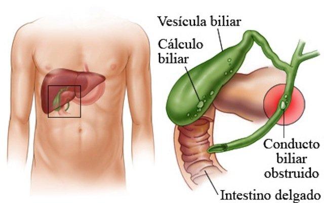 calculos en la vesicula biliar signos y sintomas